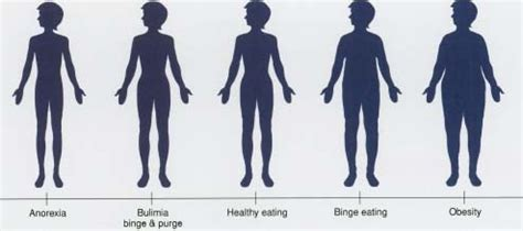 Eating Disorders - body, causes, Fear of Fat, What Are